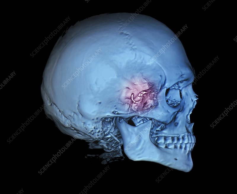 Human skull and site of pituitary gland, 3D CT scan - Stock