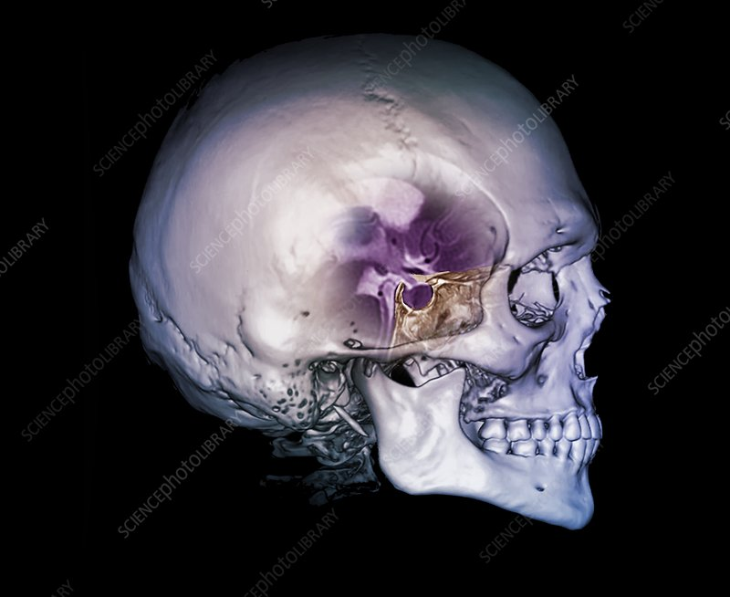 Human skull and site of pituitary gland, CT and MRI scans