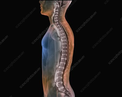Backbone and spinal cord, MRI scan