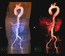 Stent in aortic aneurysm, 3D CT angiograms