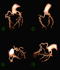 Coronary artery evaluation, 3D CT angiography