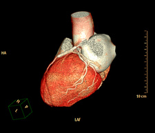 Coronary artery stent evaluation, 3D CT angiography