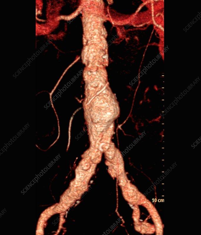 Cholesterol embolism, 3D CT angiogram