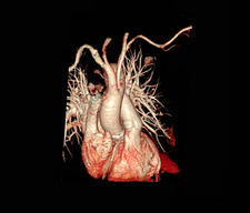 Pulmonary embolism, 3D CT angiography