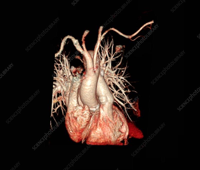 Pulmonary embolism, 3D CT angiography