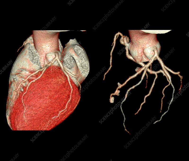 Heart and coronary artery evaluation, 3D CT angiography
