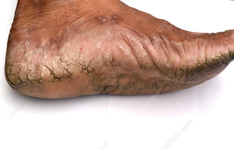 Hyperkeratosis of the foot