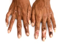 Ulcerated hands in leprosy