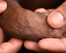 Nodular scabies lesions on penis