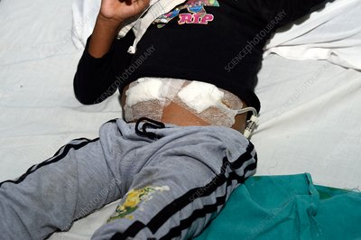 Child being treated with peritoneal dialysis