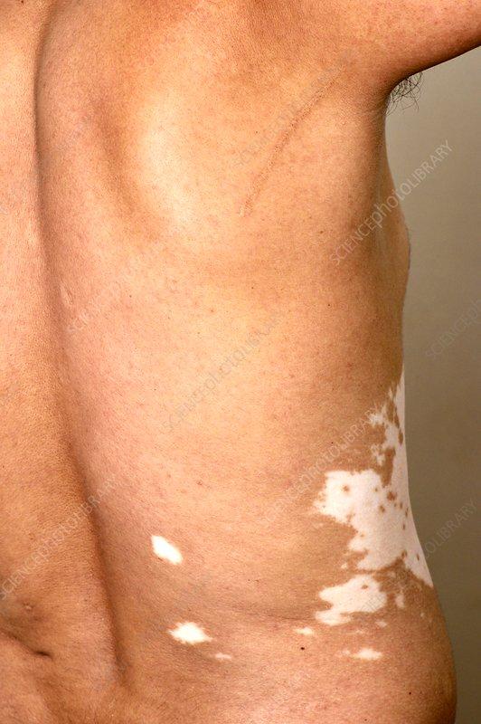 Vitiligo Skin Patches Stock Image C037 2184 Science Photo Library