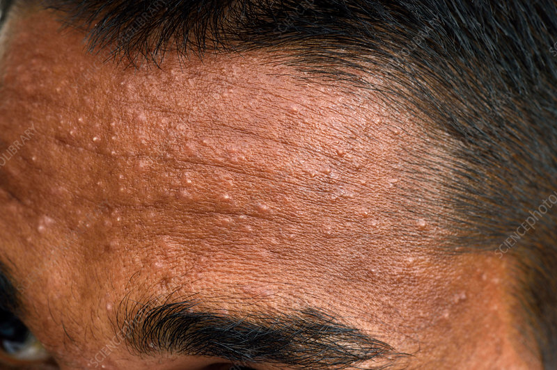 Milia on the forehead - Stock Image - C037/2196 - Science Photo Library