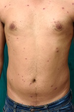 Chickenpox in adult man