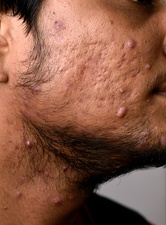 Cystic lesions in acne