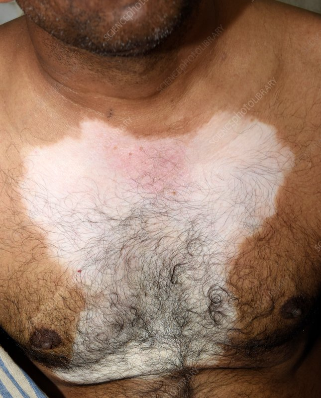 Vitiligo skin patch