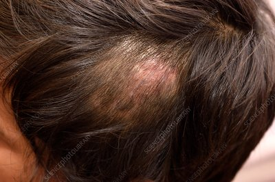 Ringworm fungal infection of the scalp
