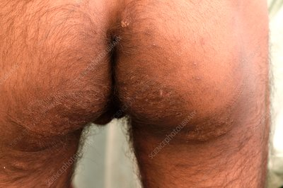 Ringworm fungal infection of the buttocks