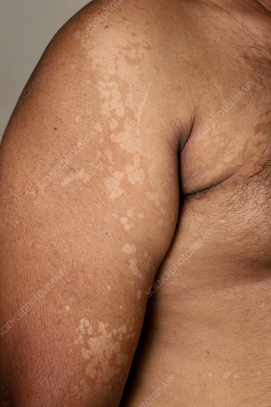 Pityriasis versicolor skin patches