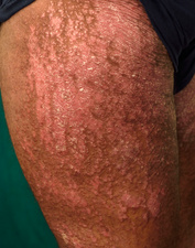 Psoriasis on the thigh