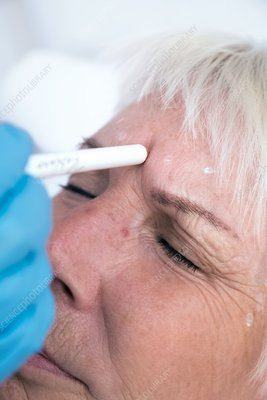 Dermal filler, anti-wrikle treatment