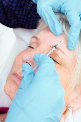 Botox injection, anti-wrinkle treatment
