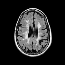 Multiple sclerosis, axial brain MRI scan
