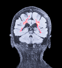 Multiple sclerosis, coronal brain MRI scan