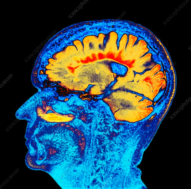 Multiple sclerosis, sagittal brain MRI scan