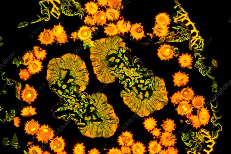 Marguerite daisy flower, fluorescence light micrograph
