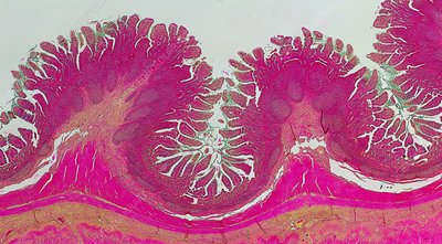 Human small intestine, light micrograph