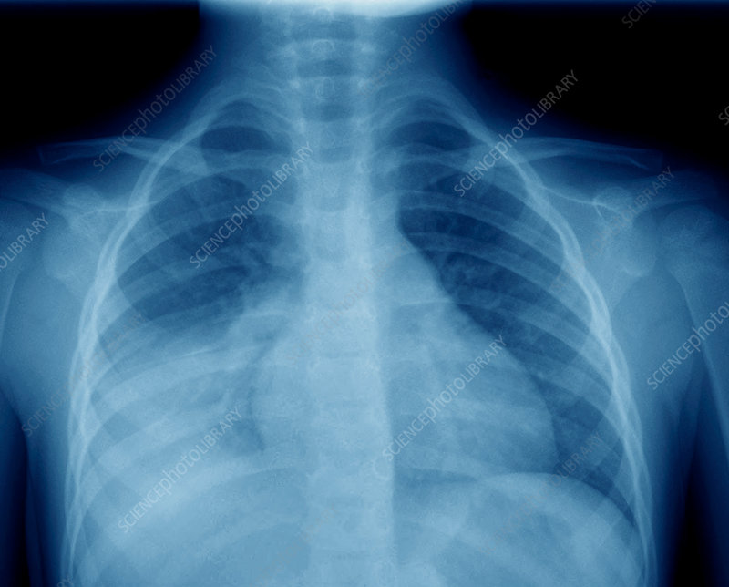 Lobar pneumonia, lung X-ray