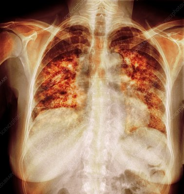Pulmonary fibrosis, coloured x-ray
