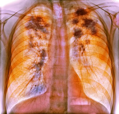 Pulmonary sarcoidosis, x-ray