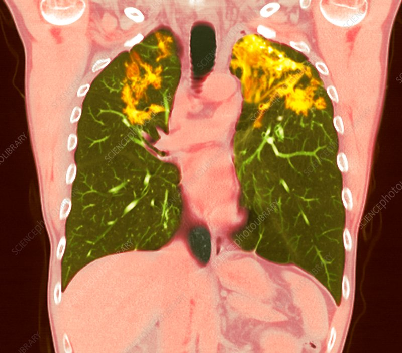 Pulmonary sarcoidosis, CT scan
