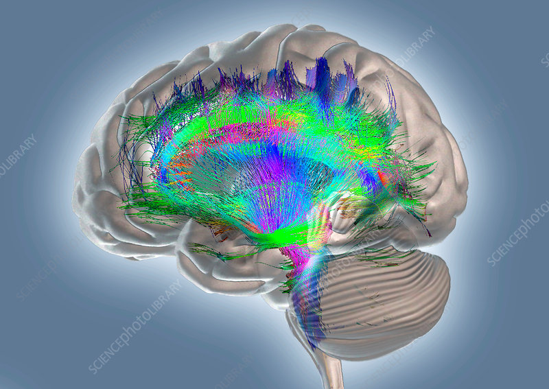 Brain fibres and structures, DTI MRI scan