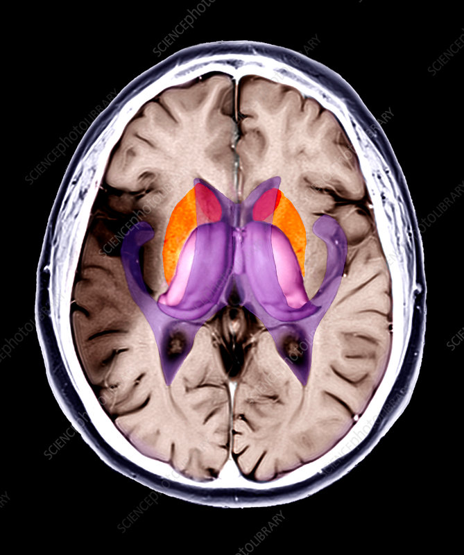 Brain damage due to a stroke, MRI scan