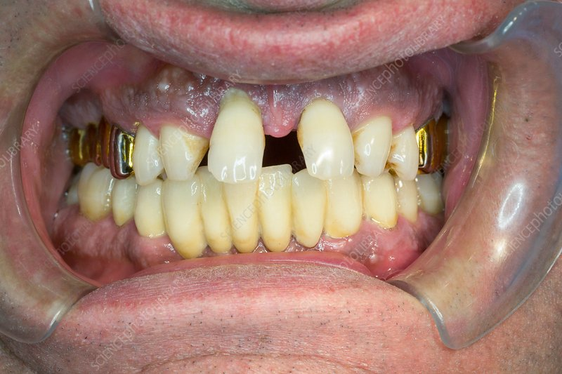 Curved central incisors