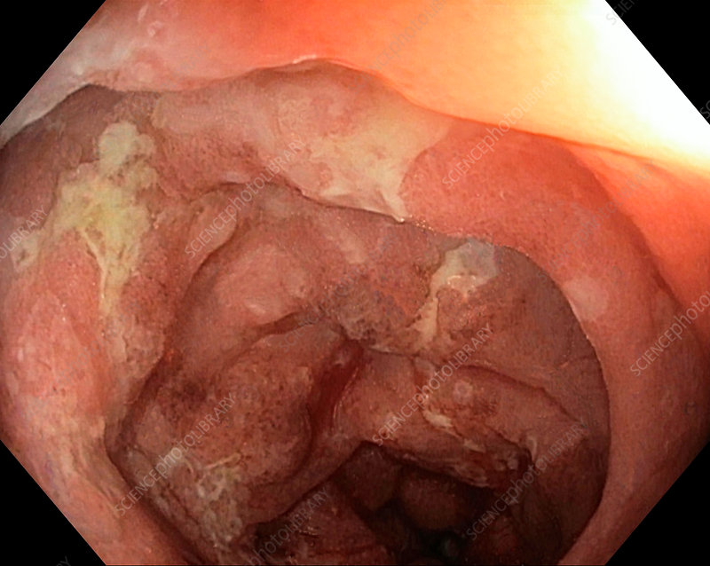 Colon in ulcerative colitis, endoscope view