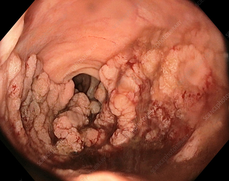 Rectal tumour, endoscope view