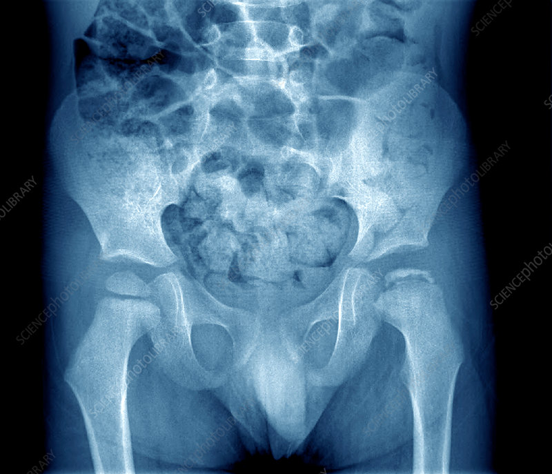 Osteochondritis of the hip, X-ray