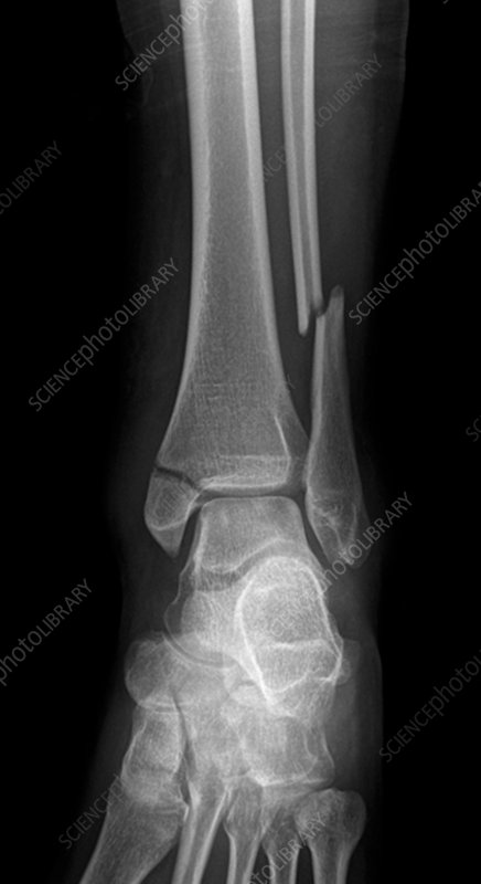 Broken ankle, X-ray