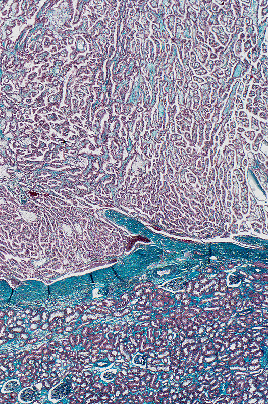 Kidney cancer, light micrograph