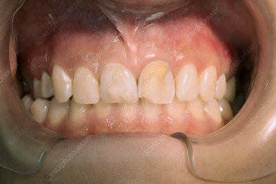 Cosmetic restoration of tooth