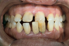 Dental malocclusion