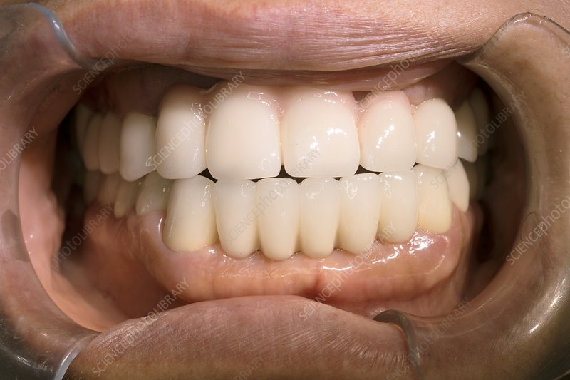Ceramic dental bridge