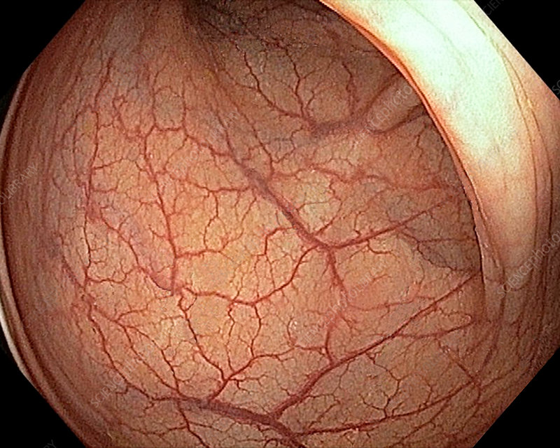 Blood vessels in the rectum, endoscope view