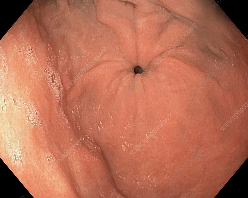 Pyloric sphincter of the stomach, endoscope view