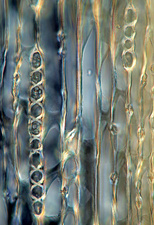 Cypress tree stalk, light micrograph