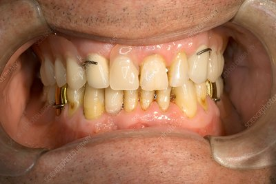 Ceramic dental crowns and dental prosthesis