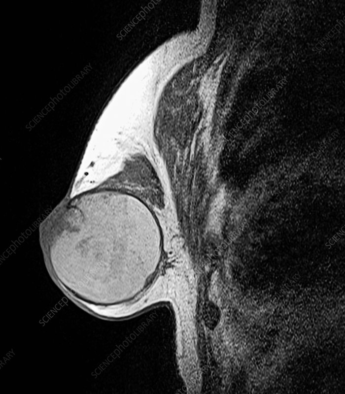 Breast Cancer Mri Scan Stock Image C037 4584 Science Photo